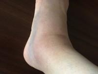 前距腓靭帯損傷